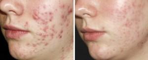acne puisten laseren