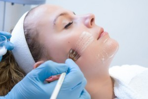 Acne peeling Deventer