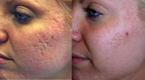 Acne littekens verwijderen Wormer